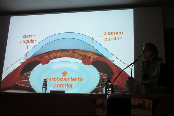 Por qué es tan importante conocer los síntomas del glaucoma por cierre angular primario (GCAP)