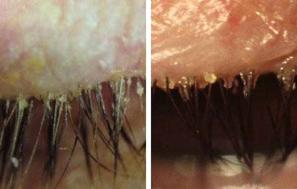 Ponencia sobre el síndrome del ojo seco: resumen y conclusiones