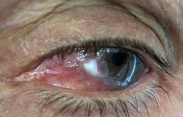 Tumores de la conjuntiva: diagnóstico y tratamientos_Clínica oftalmológica Visioncore de Barcelona