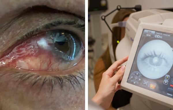 Diagnóstico y tratamientos de los tumores de la conjuntiva_Visioncore