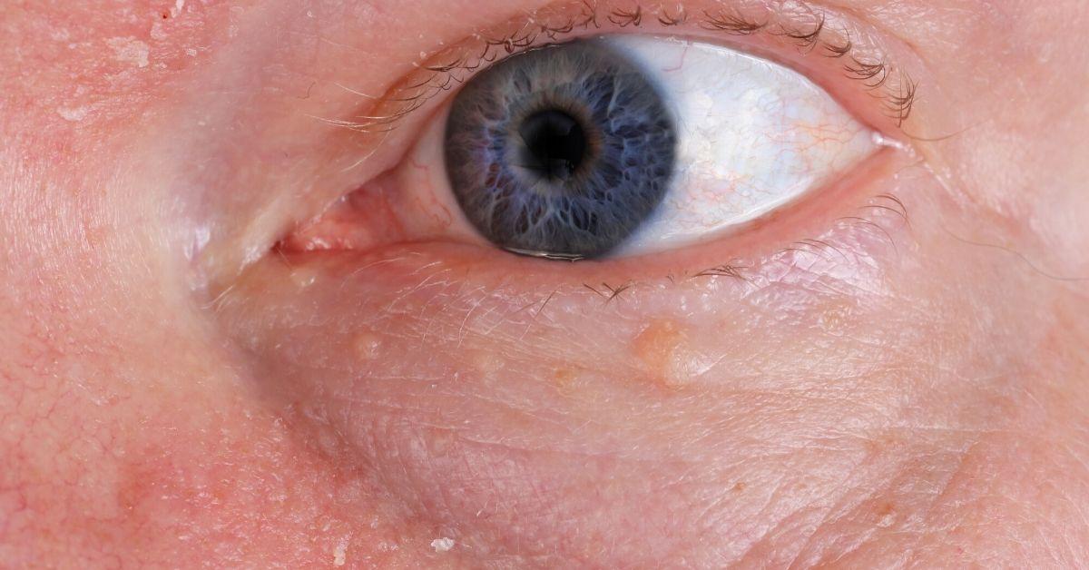 Herpes zóster oftálmico